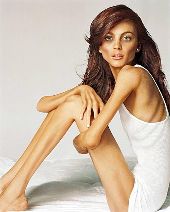 anorexia1206lindsay-lohan.jpg